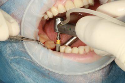 Behandlungsstrategie-mit-Zahnimplantaten