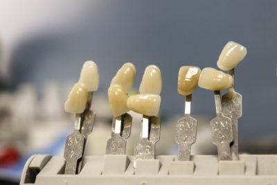 Stomatologie_Oralchirurgie_Implantologie_ Zahnersatz
