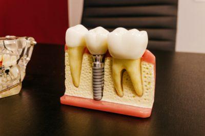Zahnmedizin-Modell-Zahnimplantate