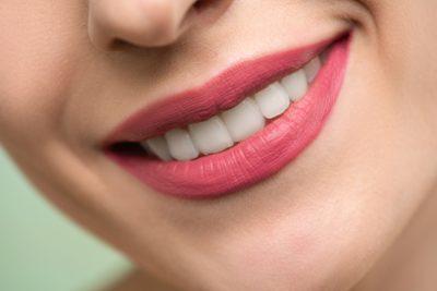 lachen-weisse-zähne-rote-lippen